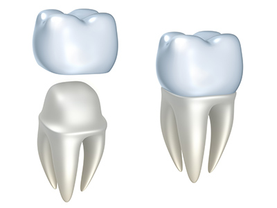When Dental Crowns Require Special Treatment