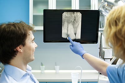 Things We Look For When Looking at Your Dental X-rays